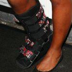 Proteza a devenit, din păcate, un accesoriu obişnuit pentru Serena